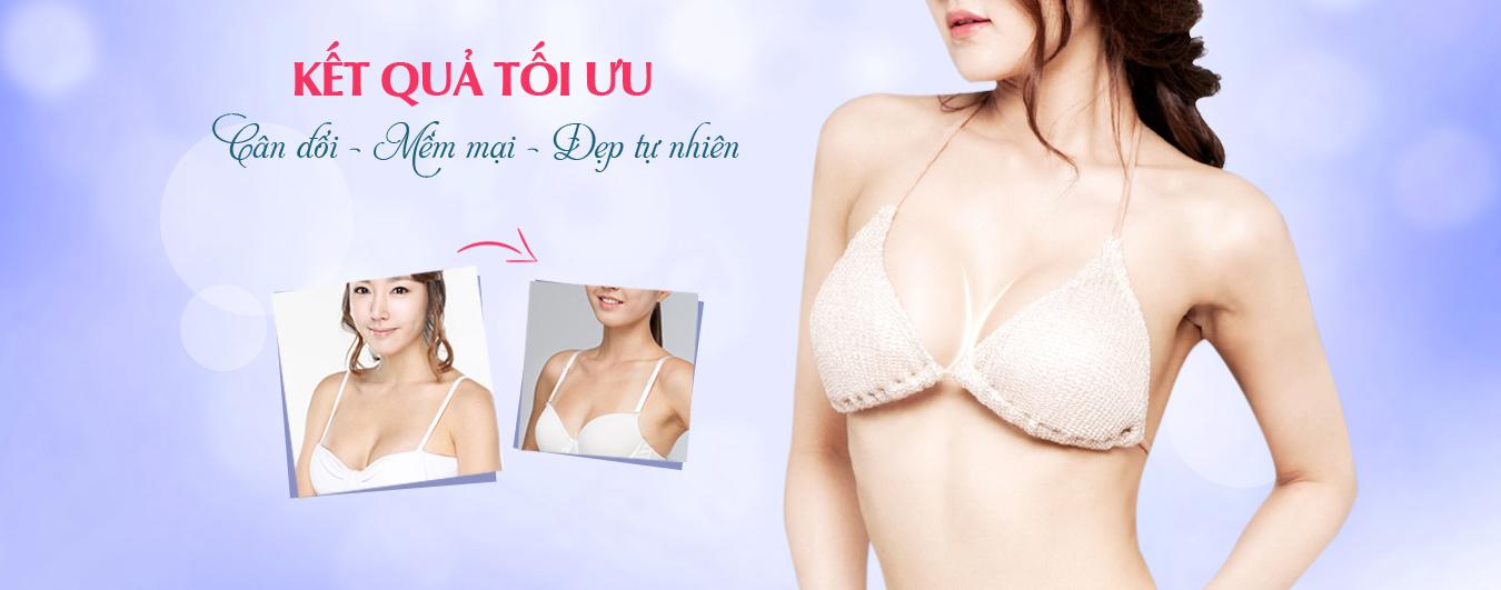 Hiệu quả nâng ngực tối ưu