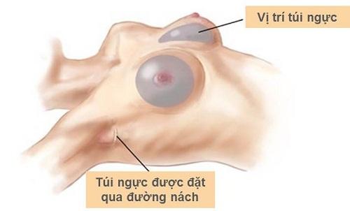 Nâng ngực nội soi đường nách có an toàn không?1