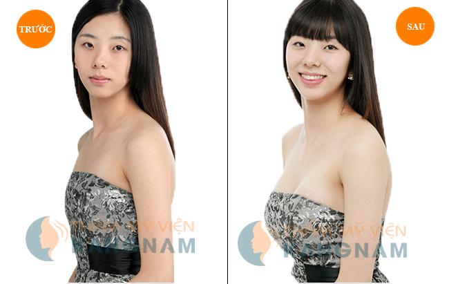 3 cach lam cho nguc to len ma khong can tap luyen 4 Bạn đã biết về ưu điểm của thẩm mỹ ngực nội soi chưa?