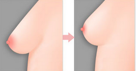 Nâng ngực chảy xệ sau sinh lấy lại vòng ngực đẹp cân đối 3