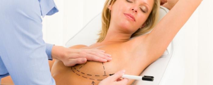 Phẫu thuật nâng vòng 1 - Chiêu làm đẹp được đa số chị em yêu thích 4