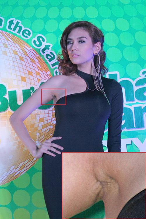 Võ Hoàng Yến cũng dính nghi án phẫu thuật bơm ngực