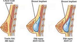 Phẫu thuật nâng ngực có đau không? – Chia sẻ từ Phi Thanh Vân?
