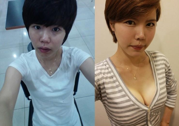 Kết quả khách hàng trước và sau nâng ngực