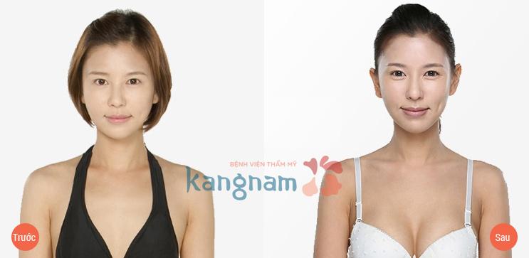 Một số kết quả nâng ngực y line hàn quốc tại kangnam