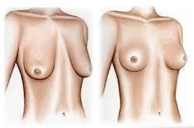 Có để lại sẹo sau khi treo ngực sa trễ không?