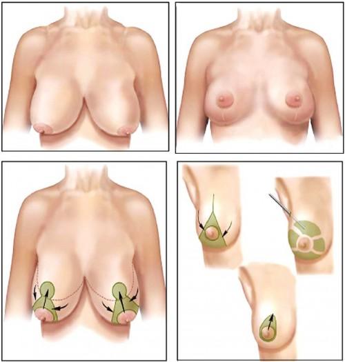 Phẫu thuật treo ngực sa trễ nâng ngực chảy xệ có để lại sẹo không