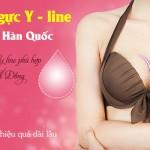 Nâng ngực Y-line – Giải pháp thẩm mỹ toàn diện vòng 1 nhỏ lép, mất cân đối