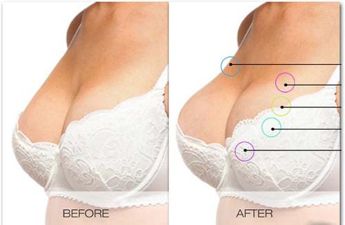 Nâng ngực không cần phẫu thuật  2
