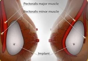 Phương pháp phẫu thuật thẩm mỹ ngực chảy xệ sau sinh 3