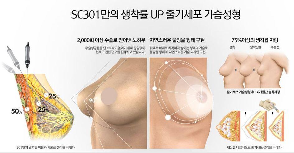 Cận cảnh quy trình nâng ngực không phẫu thuật bằng mỡ tự thân2