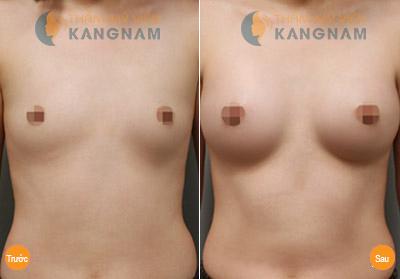 Cận cảnh quy trình nâng ngực không phẫu thuật bằng mỡ tự thân6
