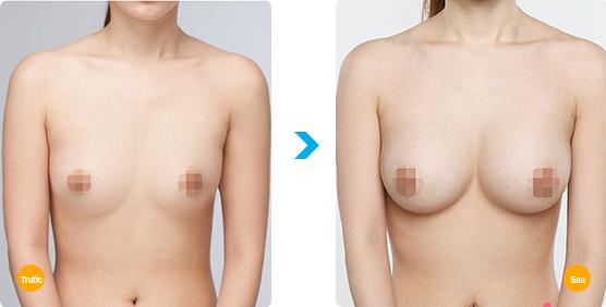 Nâng ngực nội soi ở đâu an toàn4