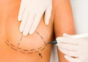 Bơm ngực bằng mỡ tự thân có an toàn không?