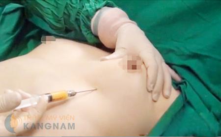 Đến trực tiếp BVTM để biết rõ chi phí nâng ngực nội soi với trường hợp của bạn