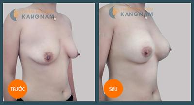 Phẫu thuật nâng ngực chảy xệ có tốt không