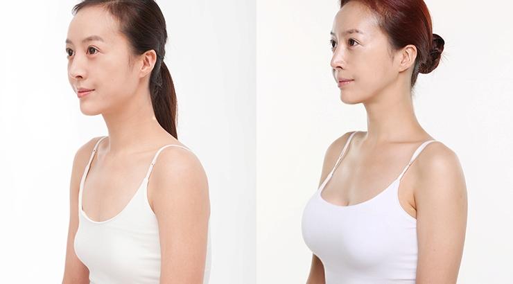 Phẫu thuật nâng ngực Y-Line có nguy hiểm không phụ thuộc vào địa chỉ thẩm mỹ