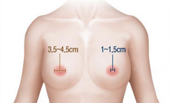 Phẫu thuật thu nhỏ quầng vú có nguy hiểm không