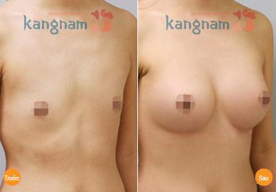 Cải thiện ngực không đều nhanh chóng, chỉ 1 lần duy nhất1
