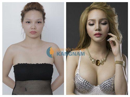 Kết quả nâng ngực Y-Line