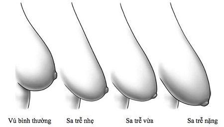 nâng ngực chảy xệ có an toàn không2