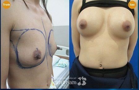 nâng ngực chảy xệ có an toàn không3
