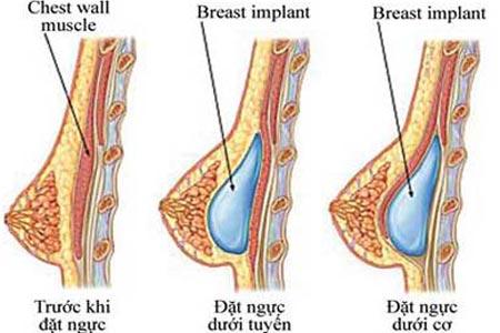 Túi độn ngực được đặt trên hoặc dưới cơ ngực lớn