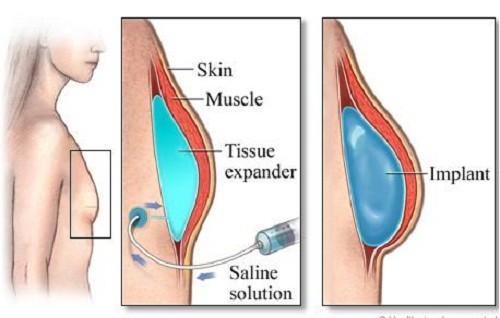 Nâng ngực nội soi cải thiện ngực không đều hiệu quả