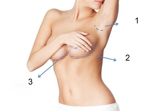 Phẫu thuật nâng ngực chảy xệ có an toàn không?