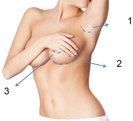 Liệu nâng ngực có hại không?