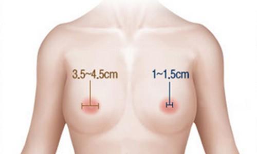 Cải thiện tối đa tình trạng quầng vú loang rộng