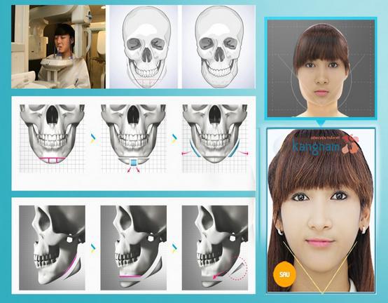 929718124_got-mat-noi-soi-duoc-thuc-hien-nhu-the-nao1