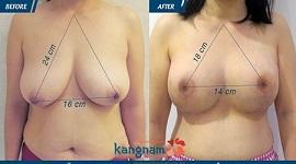 Quá trình, HIỆU QUẢ: Nâng ngực chảy xệ (Treo ngực sa trễ) sau sinh