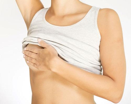 Phẫu thuật thu nhỏ quầng vú sau bao lâu thì lành?1