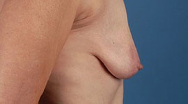 Phẫu thuật nâng ngực chảy xệ có nguy hiểm không ?