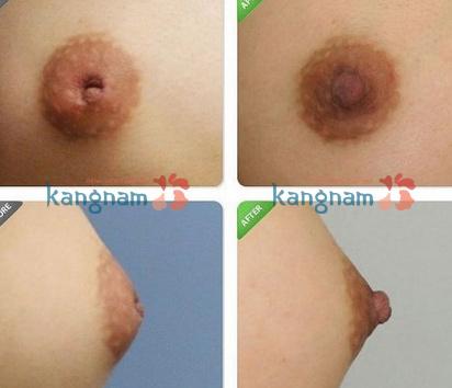 phau-thuat-keo-num-vu-tut-co-dat-khong (2)