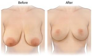 Phẫu thuật thu gọn ngực bao nhiêu tiền?