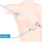 Ưu và nhược điểm khi nâng ngực bằng đường quầng vú