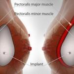 Nguyên nhân co thắt bao xơ sau khi nâng ngực và giải pháp khắc phục