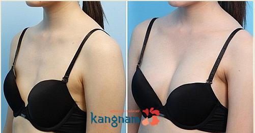 Kết quả nâng ngực Y line tại Kangnam1