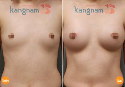 Kết quả sau phẫu thuật nâng ngực nội soi tại Kangnam