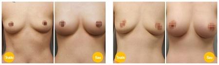 nâng ngực chảy xệ treo ngực sa trễ tại kangnam 4