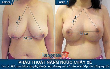 nâng ngực chảy xệ treo ngực sa trễ tại kangnam 6