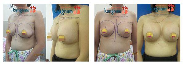 Kết quả làm ngực săn chắc tại Kangnam