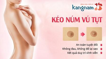 Kéo núm vú bị tụt an toàn hiệu quả tại BVTM Kangnam
