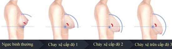 Phẫu thuật nâng ngực chảy xệ có nguy hiểm không?