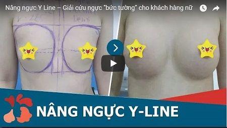 phẫu thuật nâng ngực Y line34