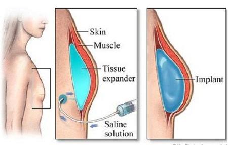 Mô hình giải đáp nâng ngực nội soi có hại không?
