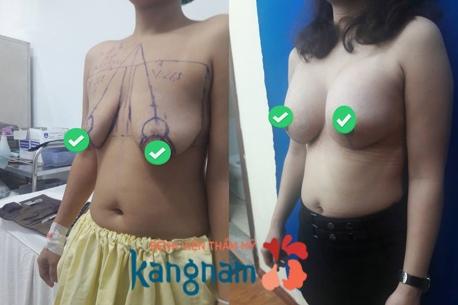 nâng ngực nội soi 9