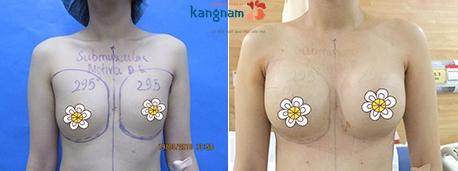 nâng ngực nội soi 2